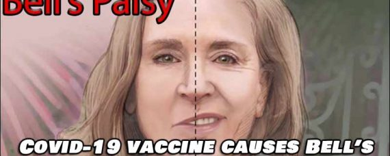 COVID-19 Vaccine Causes Bell's Palsy During Clinical Trials